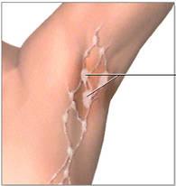 adenopatia axilar