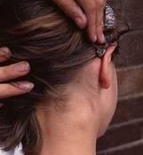 El dolor torpe en el cuello que da en el hombro